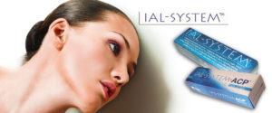 inektsii-ial-system